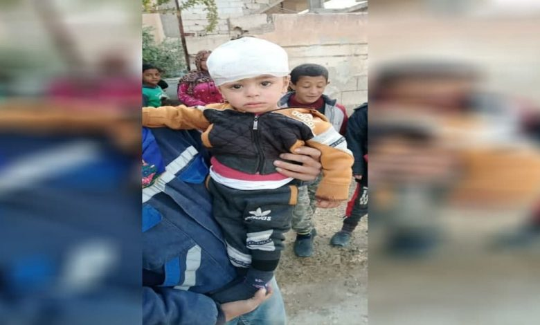 """A woman and her children were injured as a result of Turkey's targeting of """"Ain Issa"""" in the countryside of Raqqa."""